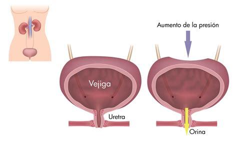 Incontinencia Urinaria | Urología y Laparoscopía