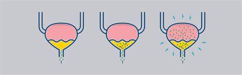 Infección del tracto urinario  ITU