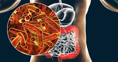 Infección por Shigella  shigelosis , lo que debes saber ...