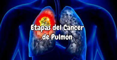 Infección pulmonar síntomas en adultos [tratamiento e ...