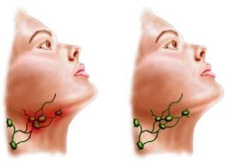 Inflamação da foto dos linfonodos submandibulares