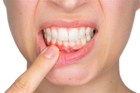 Inflamación de las encías. Causas y tratamiento. : PHB