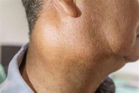 Inflamación de los ganglios linfáticos: ¿a qué se debe ...
