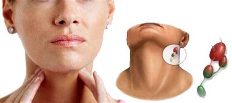 Inflamación de los ganglios linfáticos en el cuello ...