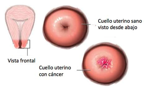 Infogen   Cáncer de cuello uterino  cáncer cervicouterino