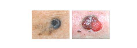 Infogen | Melanoma, Cáncer de piel y embarazo