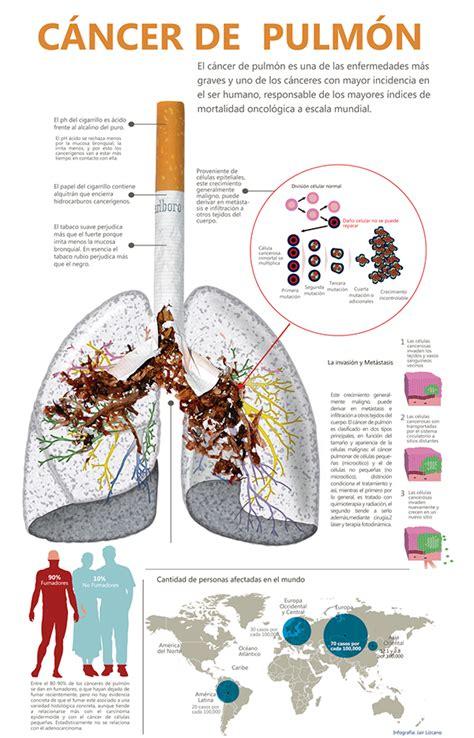 Infografía acerca del cáncer de pulmón on Behance