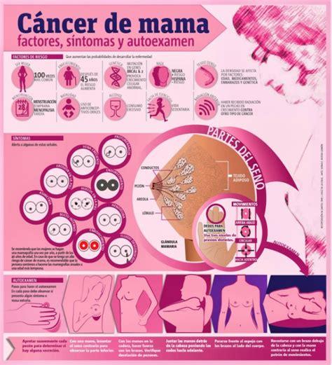 Infografía sobre el cáncer de seno: Síntomas y exámen