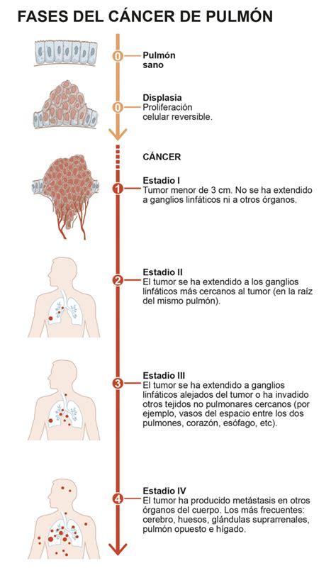 Infográfico. Fases y estadíos del cáncer de pulmón ...