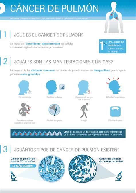 Información para la salud: Cáncer de pulmón