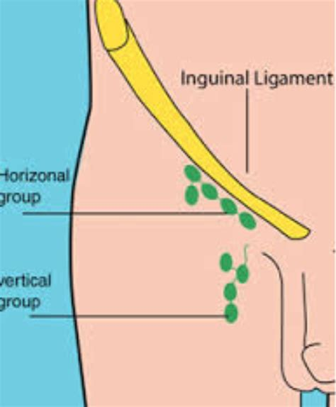 Inguinal lymph nodes   Wikiwand