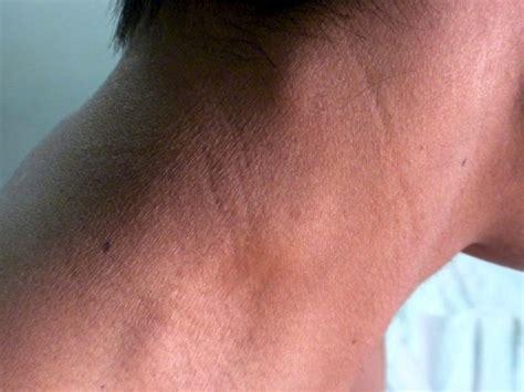 Inmunoterapia contra Linfoma no Hodgkin, opción eficaz ...