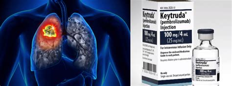 Inmunoterapia: Nuevo tratamiento  revolucionario  para los ...