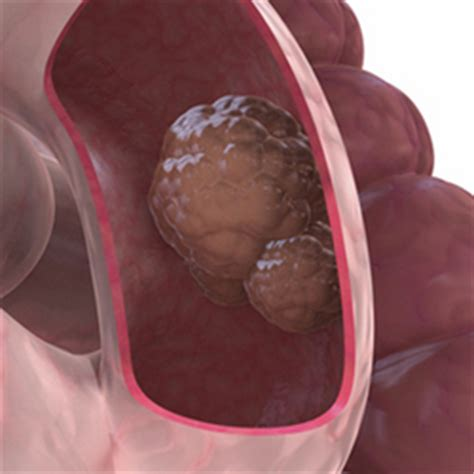 Inoperable Colon Cancer Resolved After Four Months of New ...