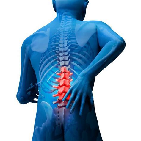 Intramedullary Spinal Tumors and Cancer Treatments in LA