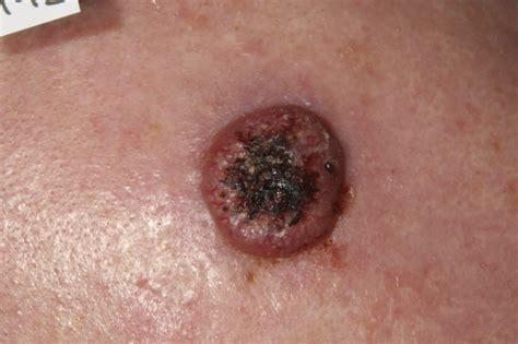 invasive squamous cell carcinoma skin cancer   pictures ...