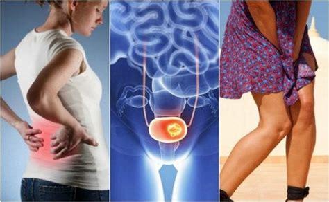 Investigaciones sobre el cáncer de vejiga — Mejor con Salud