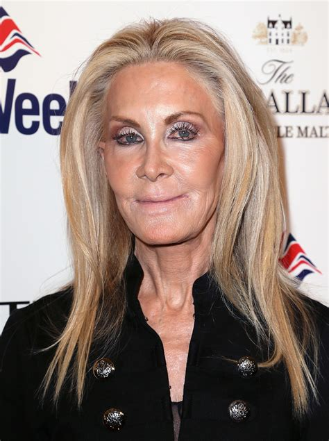 Joan Van Ark after plastic surgery    80s stars before and ...