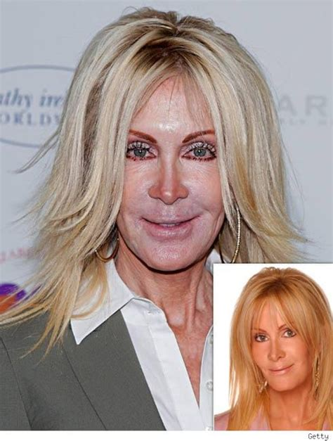 Joan Van Ark s Face    That s  Knot  Right