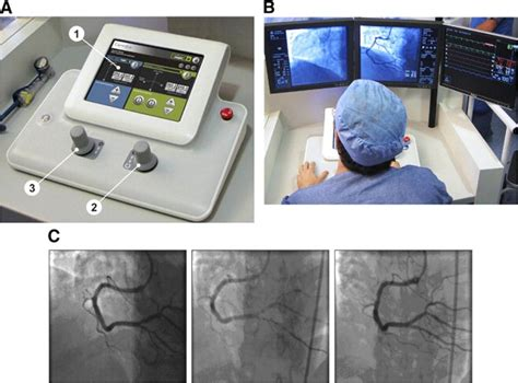Journal Club: Innovation: Robotic Coronary Angioplasty