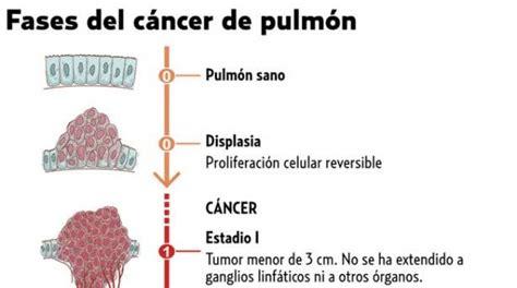 Julieth Gomez: Cancer De Pulmon
