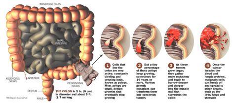 July 2010   Colon Cancer Symptoms