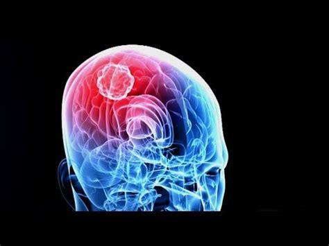 Killing Cancer   New Brain Cancer Treatment Targets Tumors ...