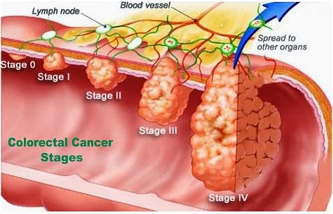 Know more colorectal colon cancer  Southlake General Surgery