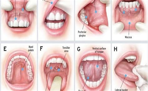 KNOW YOUR MOUTH: ORAL CANCER SIGNS, SYMPTOMS, AND PREVENTION