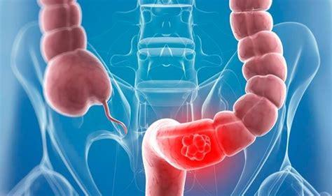 La biopsia líquida detecta un año antes las recaídas en colon