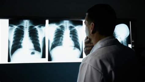 La clave para el diagnóstico del cáncer de pulmón está en ...