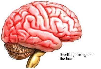 La Encefalitis muy frecuente en esta temporada del año ...