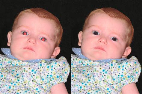 La Forma más Sencilla de Eliminar los Ojos Rojos