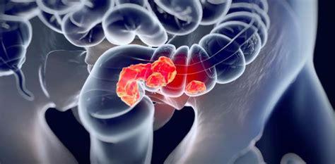 La localización del tumor de colon afecta a su evolución y ...