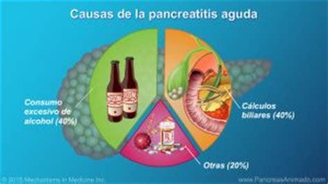 La pancreatitis, inflamación del páncreas   IOCir