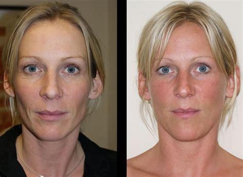 La radiofrecuencia facial, un tratamiento efectivo