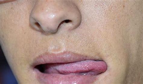 La Saliva, un factor de riesgo para el cáncer de labios ...