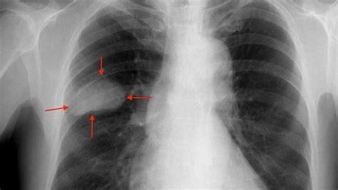 La supervivencia del cáncer de pulmón avanzado empieza a ...