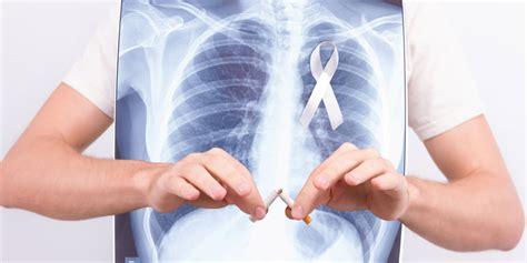 La utilidad de la inmunoterapia en cáncer de pulmón