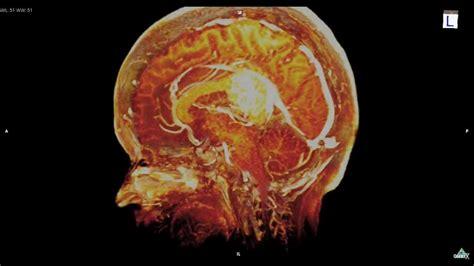 Large Brain Tumor MRI 3D: 巨大脳腫瘍   YouTube