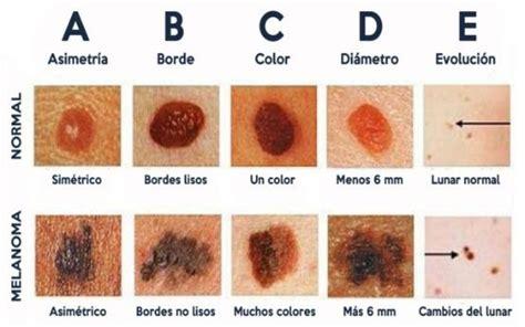 Las células del melanoma son adictas a una proteína – La ...