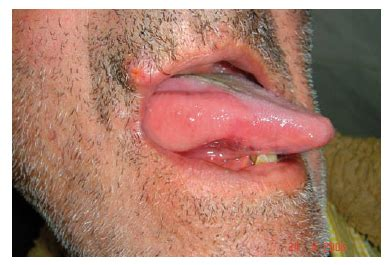Leiomiosarcoma infiltrante en la lengua