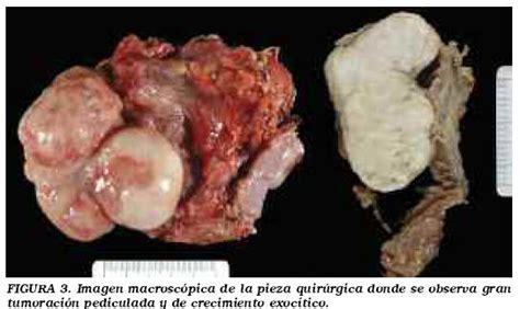 Leiomiosarcoma vesical: Presentación de un nuevo caso y ...