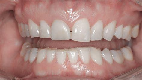 Lentes de contato dental podem recuperar desgastes em ...