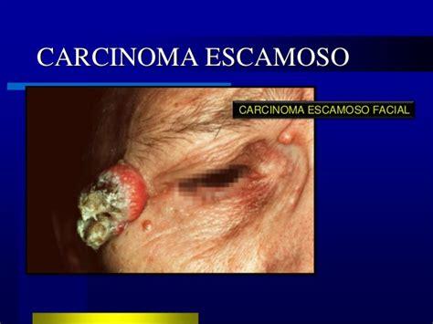 LESIONES EPIDERMICAS MALIGNAS   CANCER DE PIEL