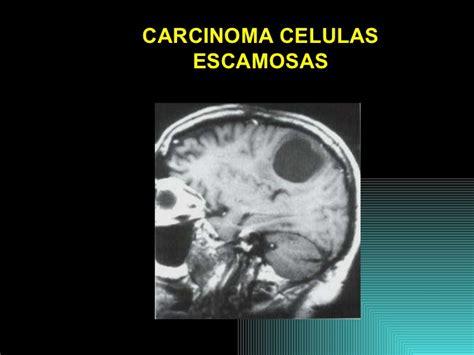 Lesiones metastasicas snc