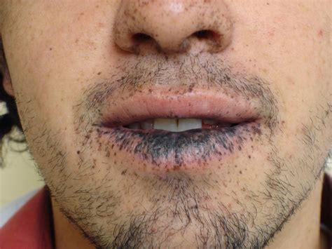 Lesiones pigmentadas | Alteraciones bucales