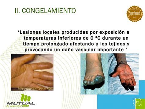 Lesiones por frio Hipotermia