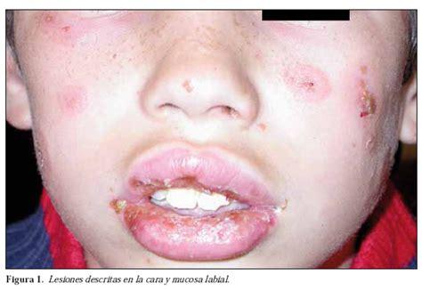 Lesiones serocostrosas en mucosa labial