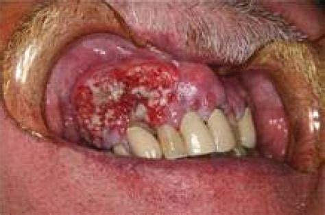 Let's Talk about Oral Cancer